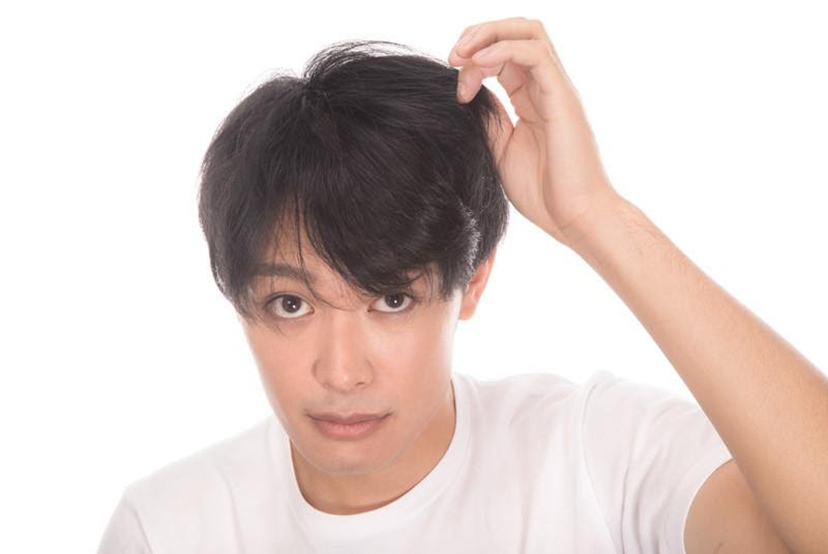 髪型 目立た ハゲ が ない